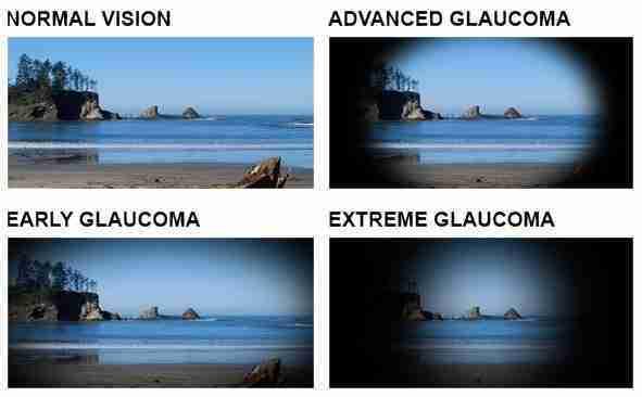 Vision Problems and Exams Optic Gallery Sahara 2580 S Decatur Blvd #6, Las Vegas, NV 89102